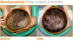 Improvements in Brachycephaly after 4 months in a Cranial Remoulding Orthisis