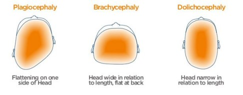 The three different types of Positional Plagiocephaly